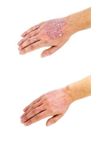 Pikkelysömör kezelés krémmel, kenőccsel