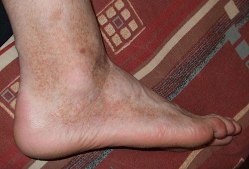 vörös foltok egy felnőtt fotó lábán