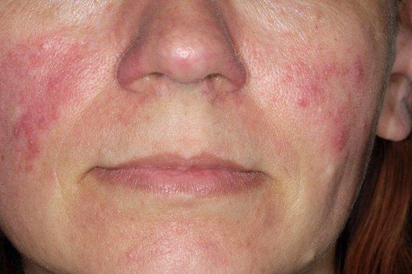 betegség az arcon hámlás és hámlás vörös foltjai)