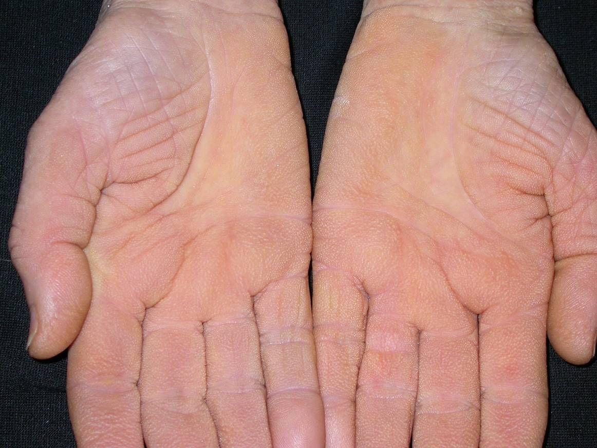 vörös foltok a tenyéren és hámlás pikkelysömör kezelése badamival nyomelemekkel