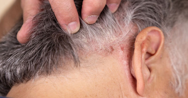 valaki meggyógyította a fejbőr pikkelysömörét)