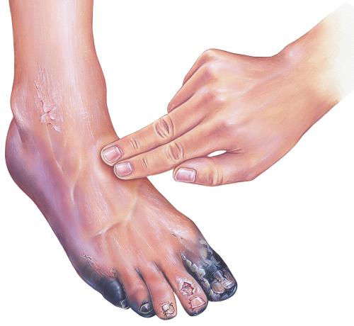 vörös foltok a lábszáron, cukorbetegségben)