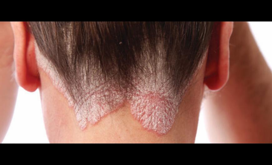 vörös folt a fején viszket és pelyhes fésű pikkelysömör kezelésére