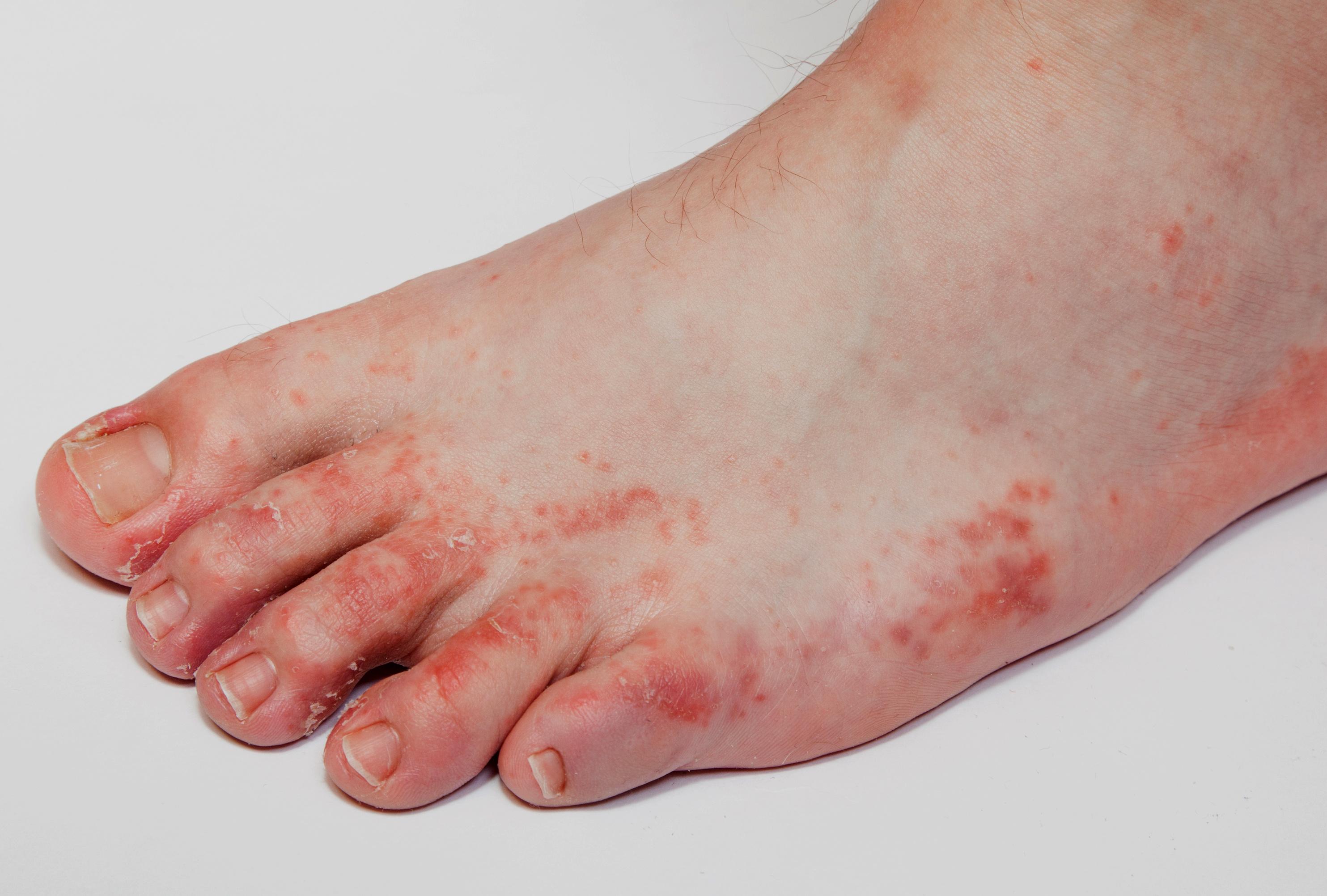 hámló vörös folt a lábán