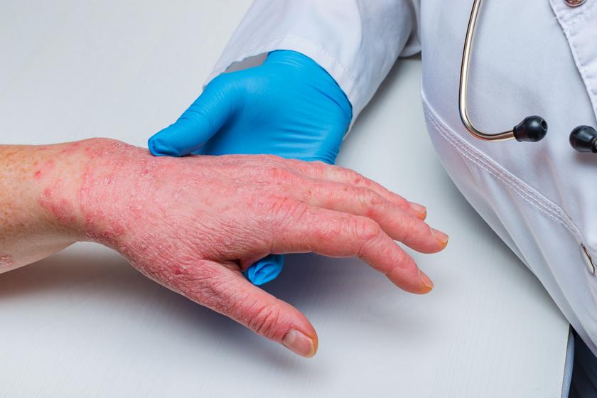 Cickaféreg kezelés, Férgek és helminták azonosak. Férgek helminták a testben való jelenlétük jelei