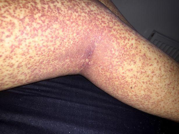 piros folt a lábán pecsétfotóval