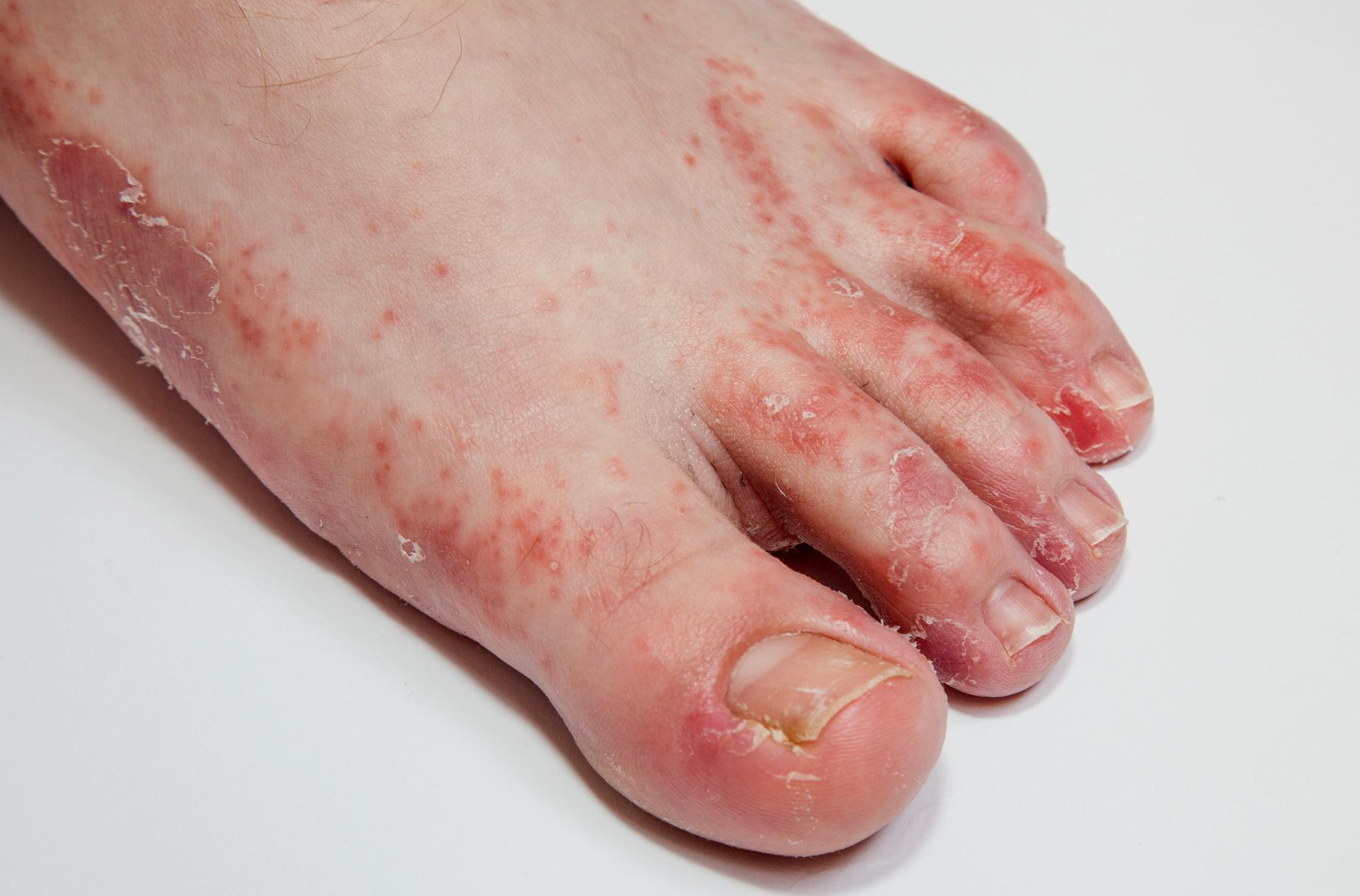 a lábujjakon lévő piros foltok gombák a bőr alatt vörös foltok a lábakon