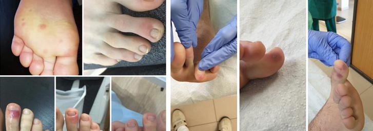 vörös foltok jelentek meg a lábán; nőnek