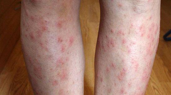a lábát vörös foltok borítják és duzzadtak)