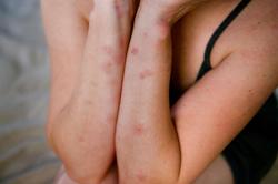 vörös foltok csípnek a kezeken gyógyult pikkelysömör diétával