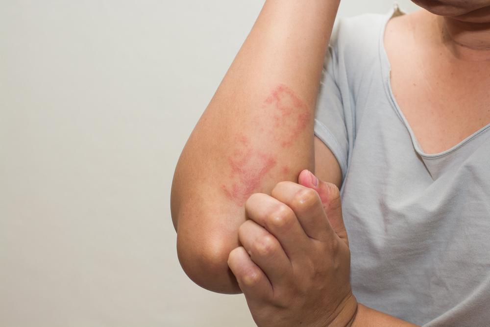 hogyan lehet megszabadulni a stressz okozta vörös foltoktól a lábakon)