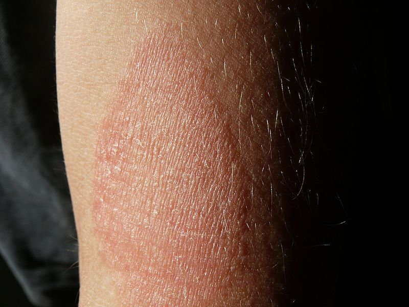 Tudta, Milyen betegségre utalnak a vörös foltok? | CIVILHETES