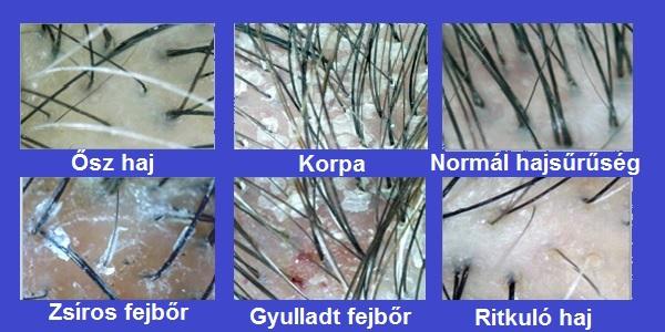 fejbőrproblémák vörös foltok