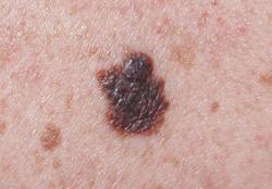 vörös foltok jelentek meg a hátán, a tubercles viszket fáj