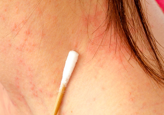 vörös foltok a kezeken és a nyakon viszketnek gennyes pikkelysömör kezelése