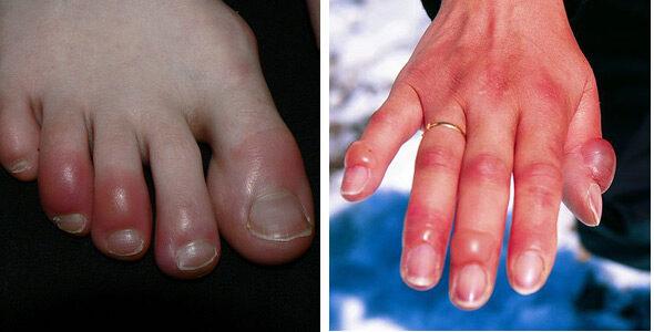 vörös foltok az ujjakon és a lábujjakon ooo media kenőcs pikkelysömörhöz