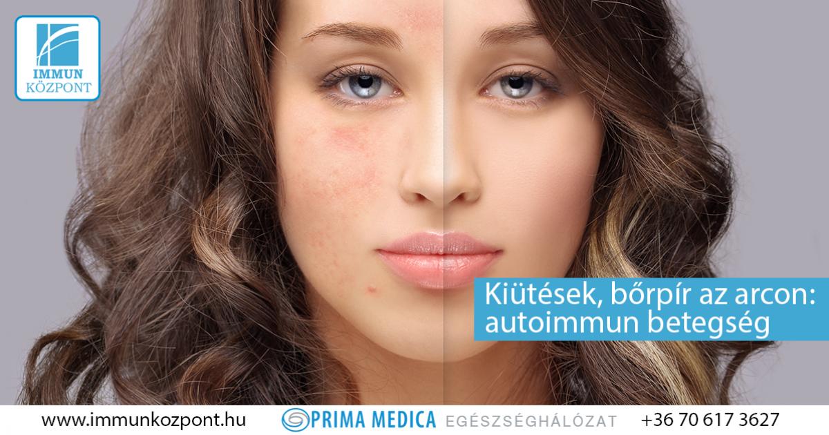 vörös foltok bukkantak fel az arcán és viszketnek skin capom pikkelysömör kezelés reviews