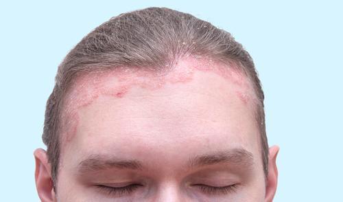 gyógymódok a fej pikkelysömörhöz