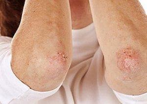 A plakk diagnosztizálása és kezelése - Chicken pox November