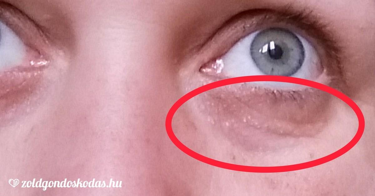vörös foltok az arcon a szem alatti duzzanattal