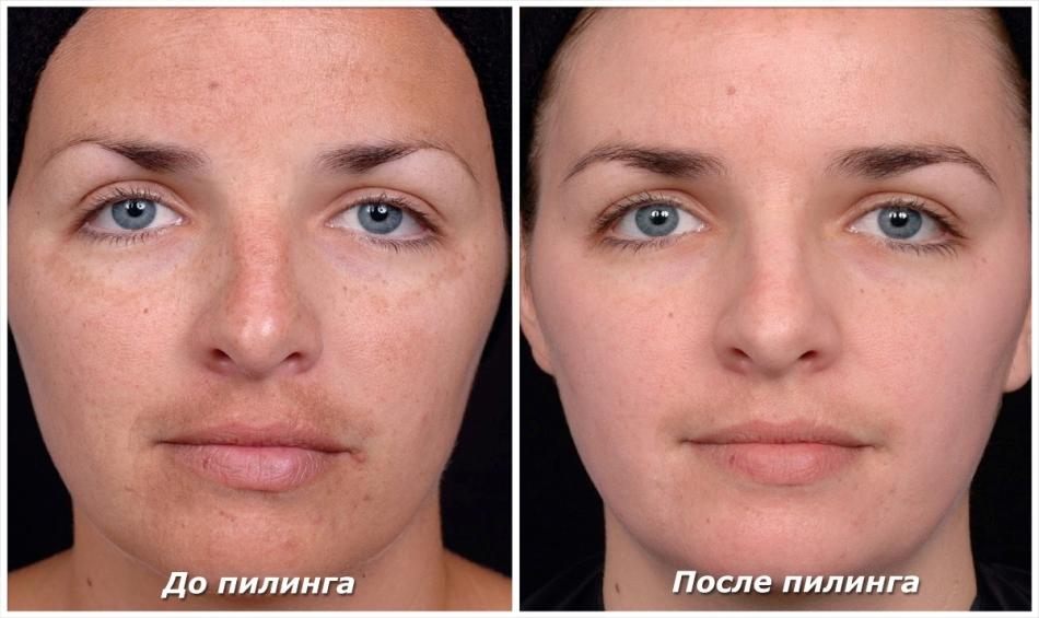 Arcmaszkok: 5 dolog amit mindenki rosszul csinál (és hogyan kell jól csinálni) | Eveline Cosmetics