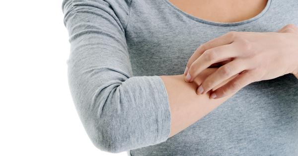 pikkelysömör megnyilvánulása és kezelése hogyan lehet eltávolítani egy vörös foltot seb után