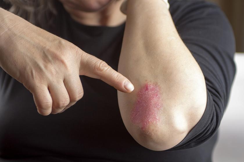 Psoriasis a kezek - fotó és kezelése a kezdeti szakaszban - Klinikák