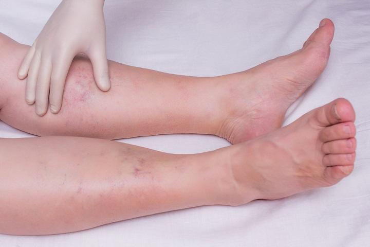 vörös foltokkal borított lábujjak