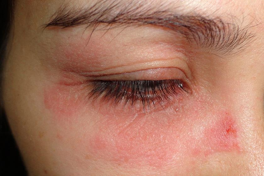 vörös folt és pikkelyes a szem alatt