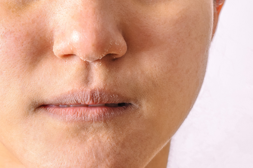 betegség az arcon hámlás és hámlás vörös foltjai