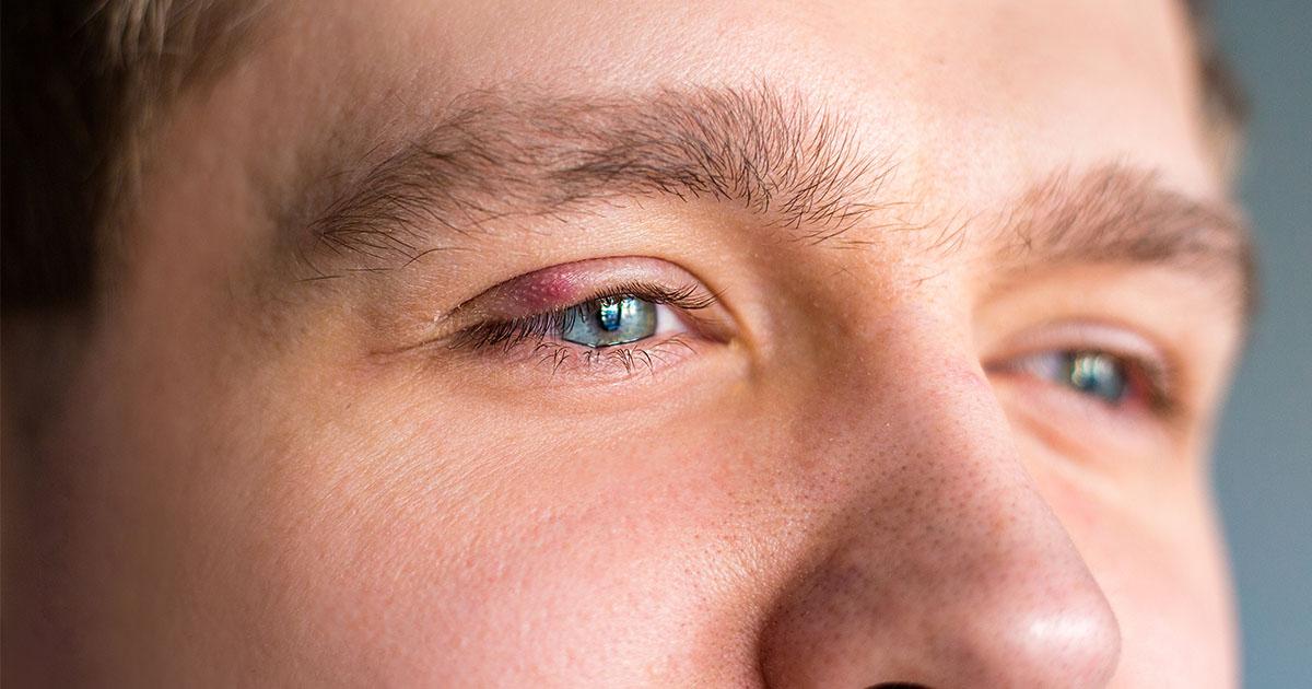 pikkelysömör a szemhéjon hogyan kell kezelni