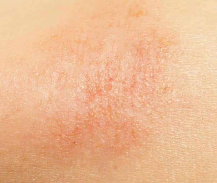 miért száraz a bőr és vörös foltok)