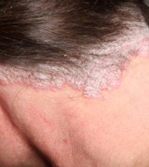 krém tiszta bőr a pikkelysömörből maitan vélemények a pikkelysömör kezeléséről szóda véleményekkel