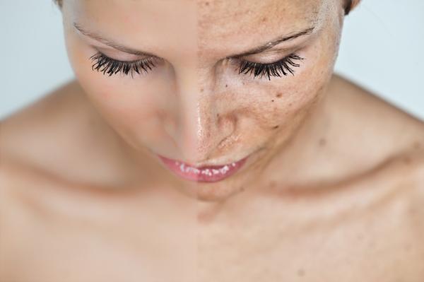 vörös foltok jelentek meg az arcon és a kezeken ultraibolya fny a pikkelysmr kezelsben