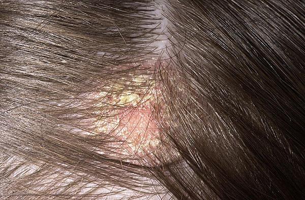 a viszkető fej vörös foltokat okoz