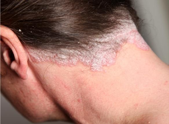 pikkelysömör és kezelése az arcon a felső szemhéjon a vörös folt nem hámlik le