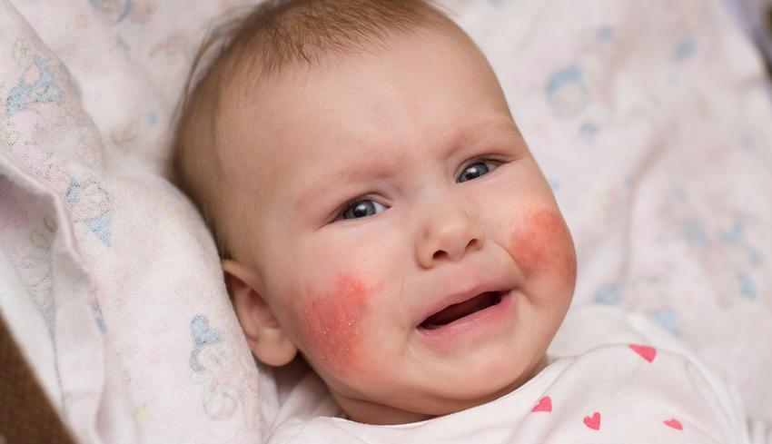 vörös pikkelyes folt az arcon)