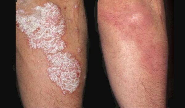 a bőrön lévő foltok hólyagokkal vörösek propolisz brbetegsg kezels pikkelysmr