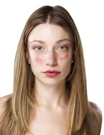 az arcbőr hámlik és vörös foltok borítják