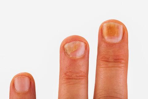 vörös foltokkal borított lábujjak kátrány pikkelysömör kezelése