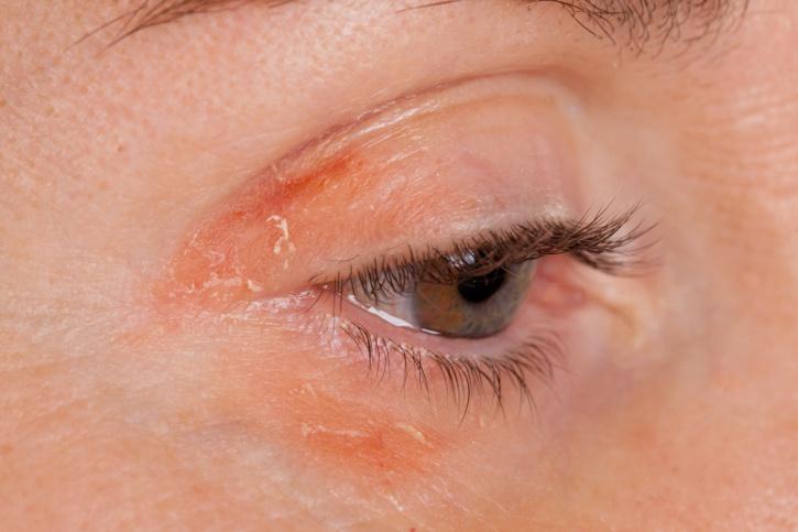 Pikkelyes és vörös szem körüli bőr