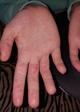 hólyagos vörös folt a kezén)
