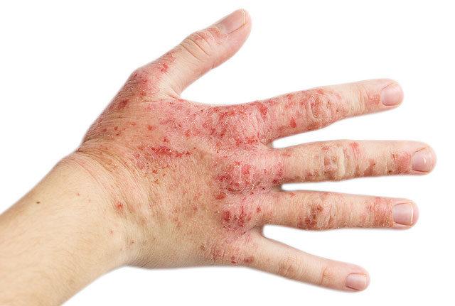 idegalapú vörös foltok a kezeken)