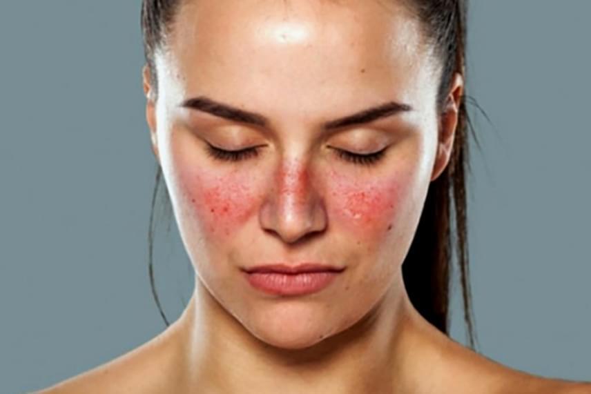 vörös lapos foltok az arc bőrén)