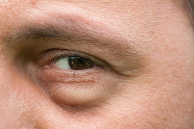 a szem alatt a hátán vörös foltok húzódnak le)