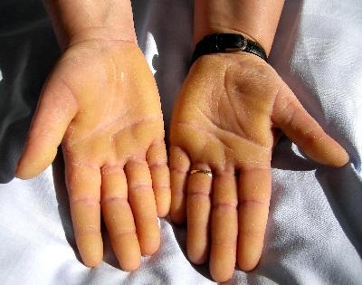 mennyi ideig tart a pikkelysmr kezelse