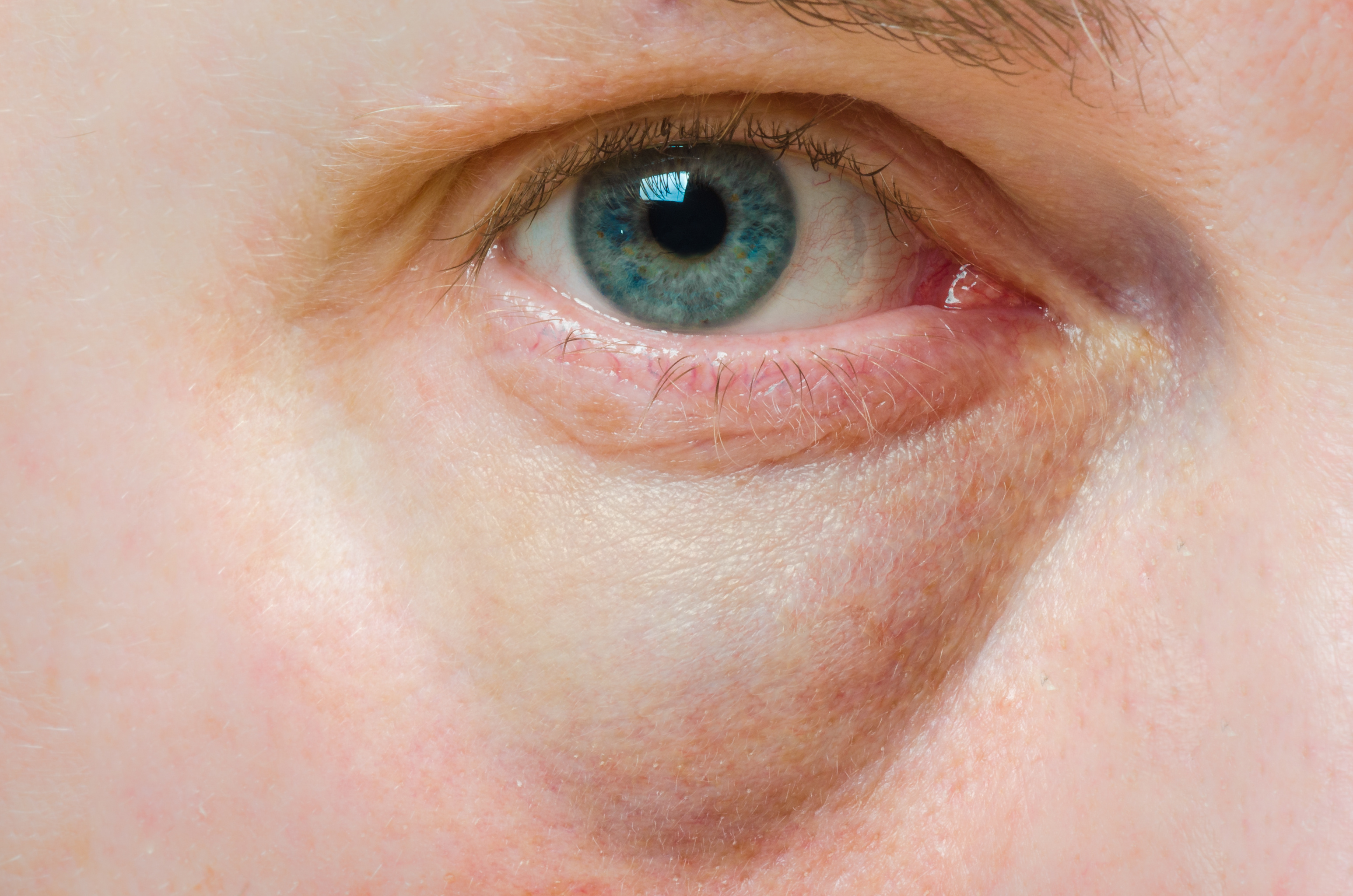 szemek vizes vörös foltok az arcon