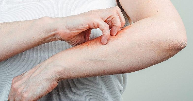 miért vannak piros foltok a kezemen