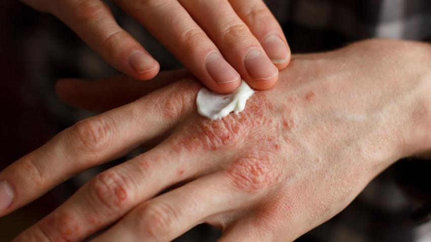 száraz pikkelysömör kezelése a kezeken
