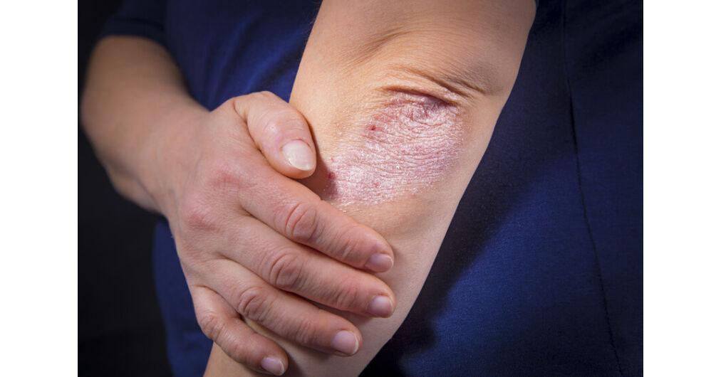 pikkelysömör kezelése színterápiával